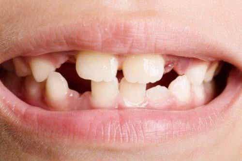 Tannagenesi: Typer og behandlinger