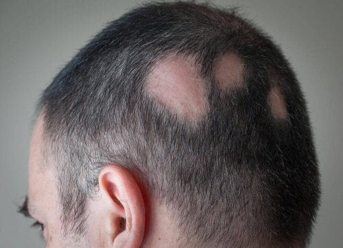 Hvordan behandle flekkvis hårtap?