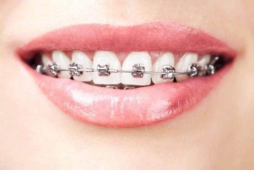 Kvinne med tannregulering