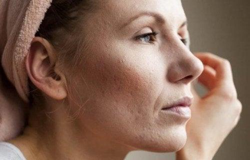 Gjør porene mindre med disse 8 flotte tipsene