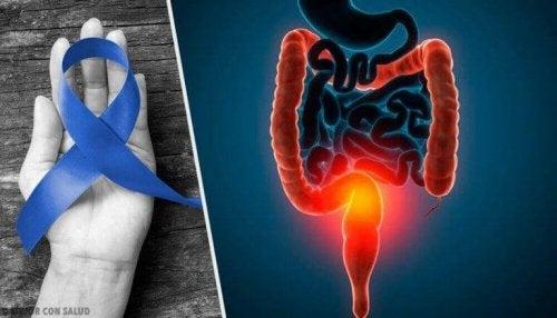 Forskning om kjøtt og kreft henger sammen.