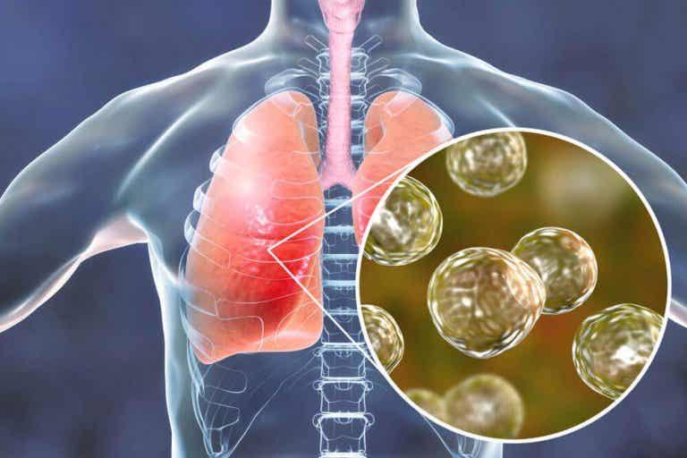 5 naturlige behandlinger mot symptomene ved blastomykose