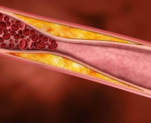 Kolesterol påvirkes av forskjellige ting.
