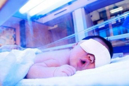 behandling av gulsott hos spedbarn
