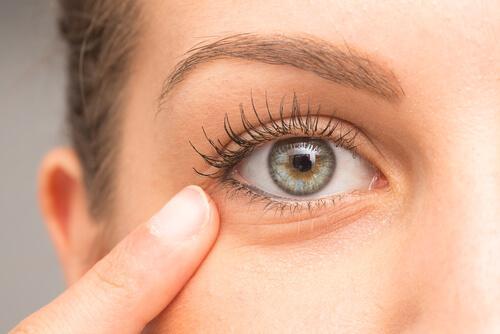 Mørke ringer rundt øynene kan enkelt reduseres hjemme