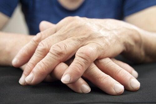 smertefulle ledd i hender