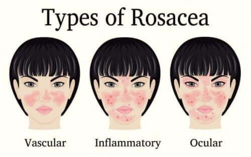 de forskjellige typene rosacea