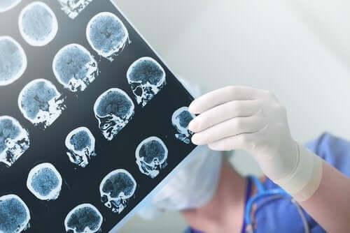Demens og Alzheimers finnes i hjernen, men i forskjellige områder.