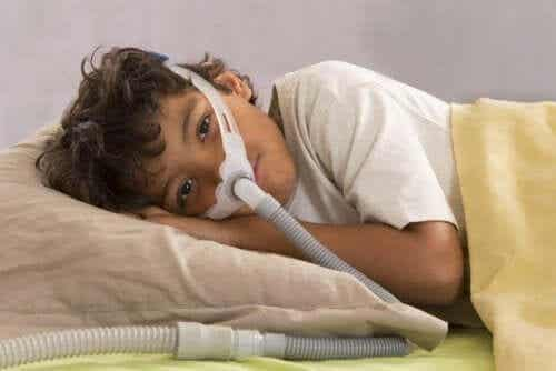 Obstruktiv søvnapné hos barn