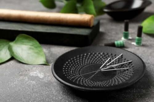 5 fordeler med akupunktur som du bør vite om