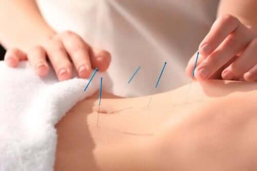 Akupunktur bidrar til å redusere smerte