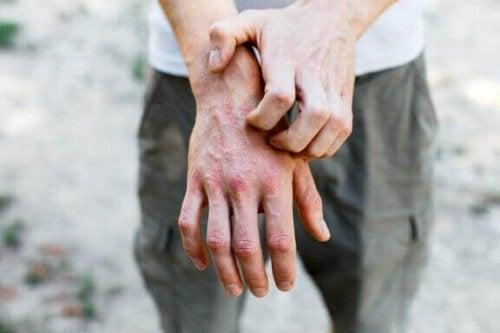 6 hjemmemedisiner for å behandle kontaktdermatitt