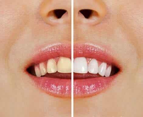 Naturlige produkter for å bleke tennene dine