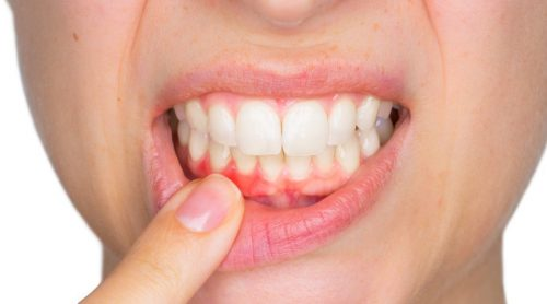 Tannbyller: Dette bør du vite