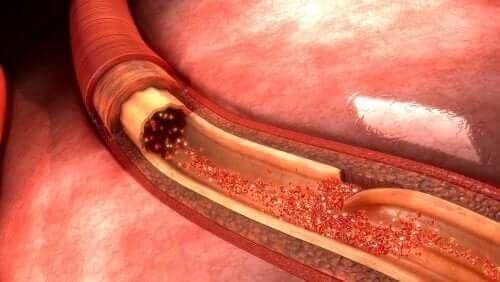 Aortadisseksjon: Hva det er og hva som forårsaker det