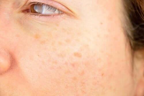 Flekker i kvinnes ansikt