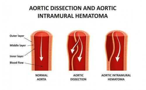 aortadisseksjon arteriekar