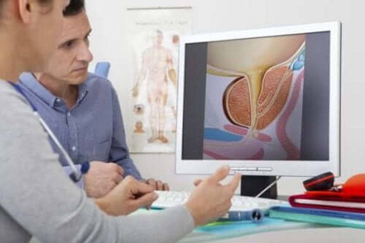 hva er prostatahyperplasi