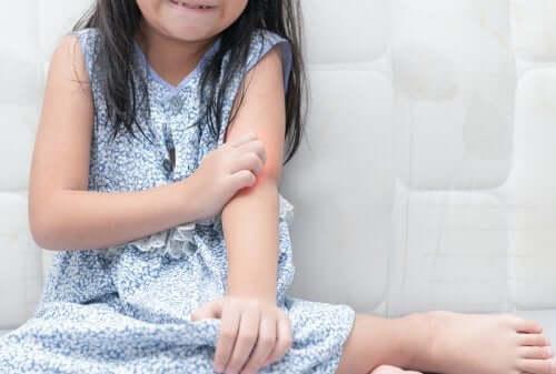 Råd for å håndtere psoriasis hos barn
