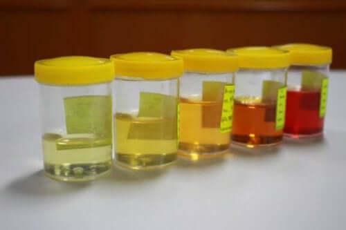 Lær alt om abnormiteter i urinen din