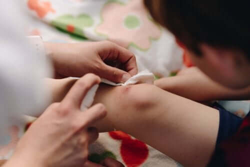 Grunnleggende teknikker for lukking av sår