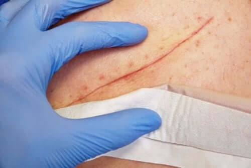 Sydd sår