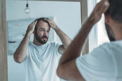 Mann med flekkvis hårtap