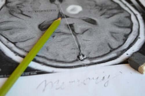 Forebygging av og symptomer på hukommelsestap