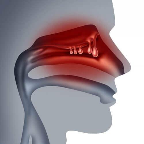 Administrering av medisiner gjennom nesen fungerer godt for pasienter som har problemer med å svelge.