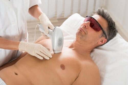 En mann som fjerner hår med laser