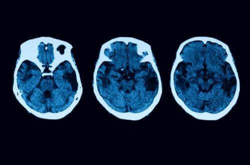 Posterior kortikal atrofi – diagnose og behandling