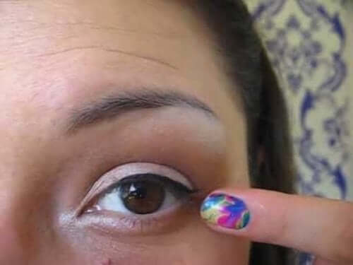 Kvinne peker mot et øyelokk med blefaritt