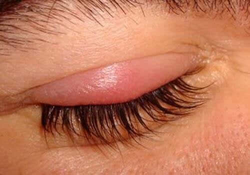 Midd eller lus kan forårsake øyelokksbetennelse