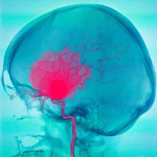 CP – Hjerneskade