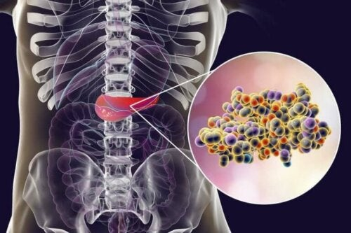 Kunstige søtningsstoffer uten kalorier øker insulin.