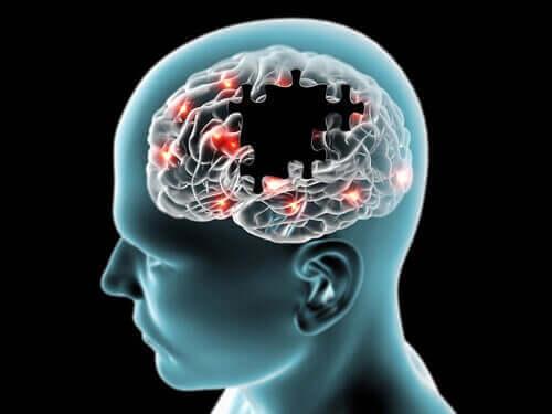Hjernen som et puslespill der noen brikker mangler