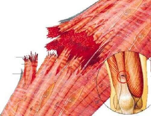Muskelstrekk