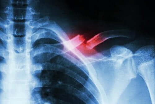 Røntgen av et brudd