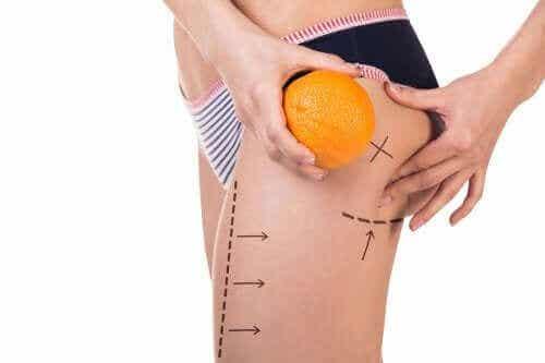 Tre menyer du kan prøve for å forebygge cellulitter