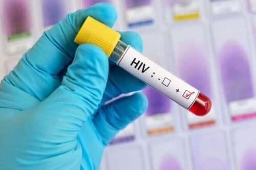 Hiv-blodprøve.