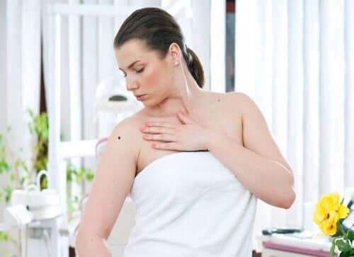 Kvinne med føflekk som kan være ondartet melanom.