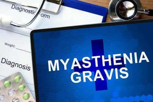 Lær alt om sykdommen myasthenia gravis