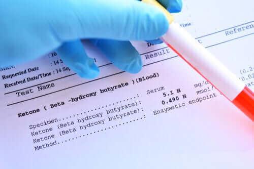 Det er viktig å ta blodprøver regelmessig.