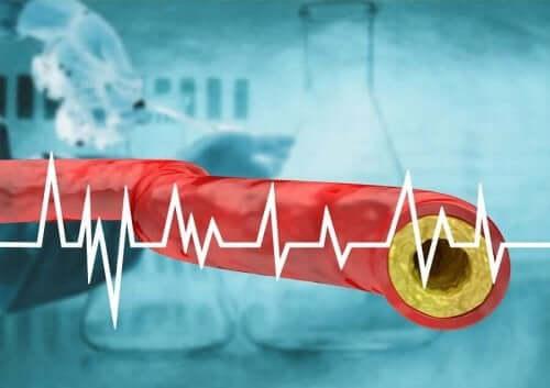 En illustrasjon av høyt kolesterol.