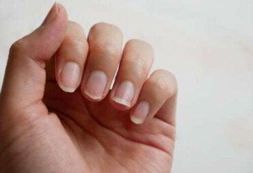 Fire naturlige ingredienser for å behandle sprø negler