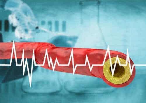 Hold høyt kolesterol i sjakk gjennom kostholdet ditt