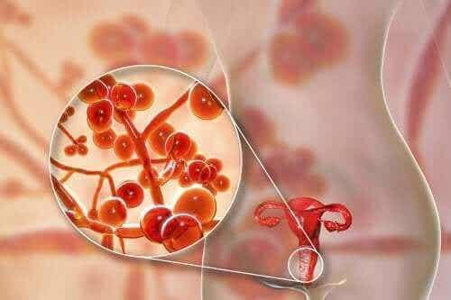 Mycoplasma Genitalium: Årsaker, symptomer og behandling