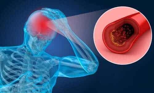 Risikofaktorer og symptomer på hjerneslag