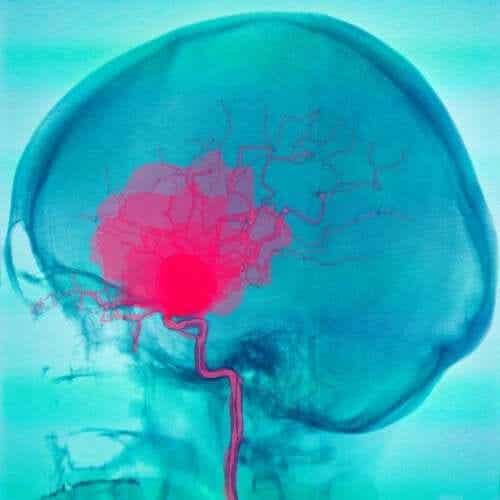 Hjernehinneblødning og subduralt hematom