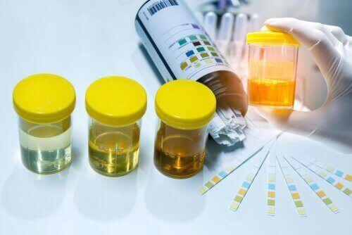 Reaktanter for nitritter i urinen blir som regel rosa når de blir oppdaget.
